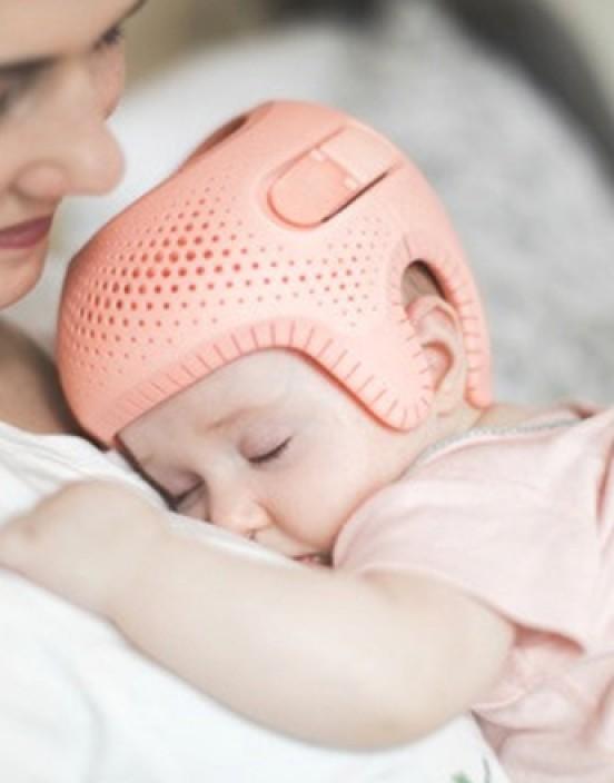 Talee - 3D Kopforthese bei Plagiozephalie